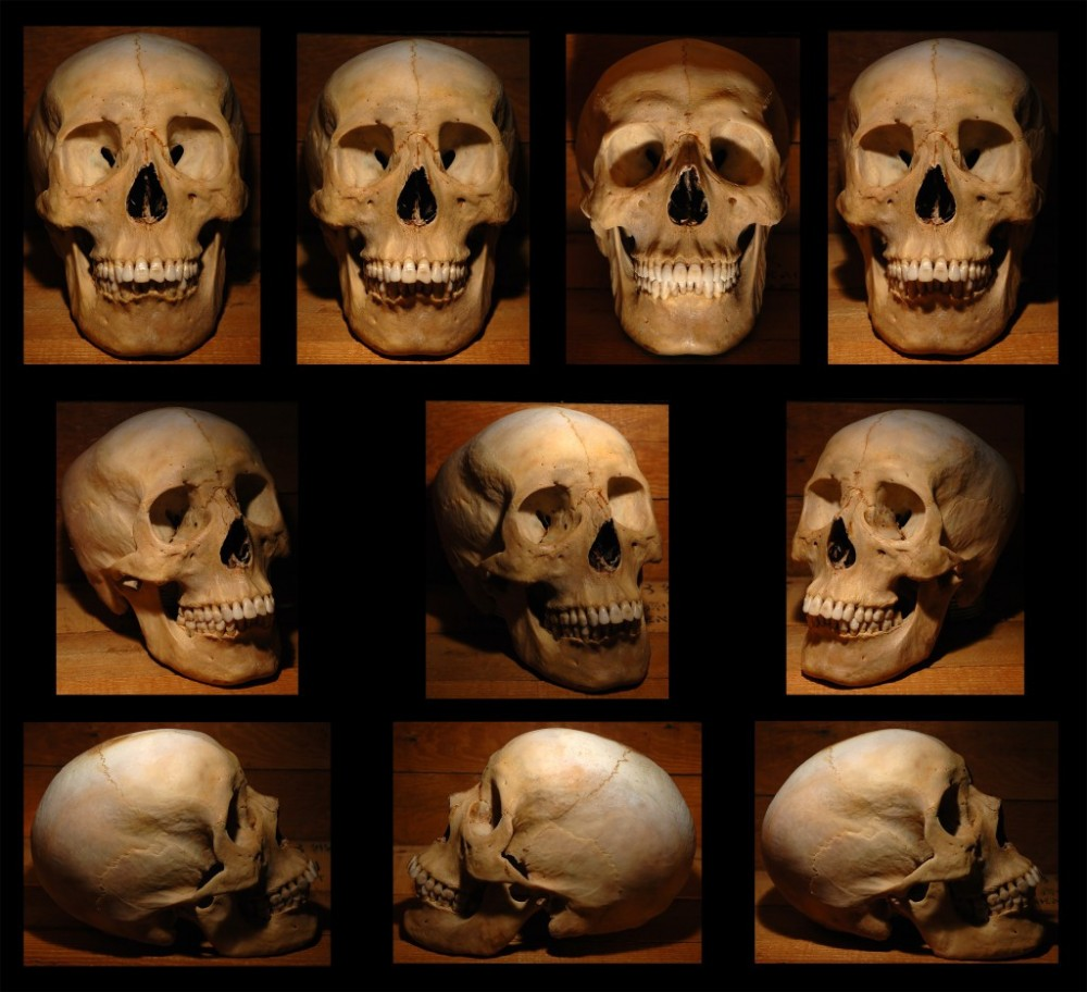 Human Skull 2 by rgstock777 1000x912 - Ultimate Skull Reference Images Pack